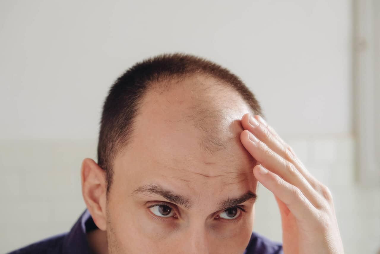 Whey Protein Haarausfall